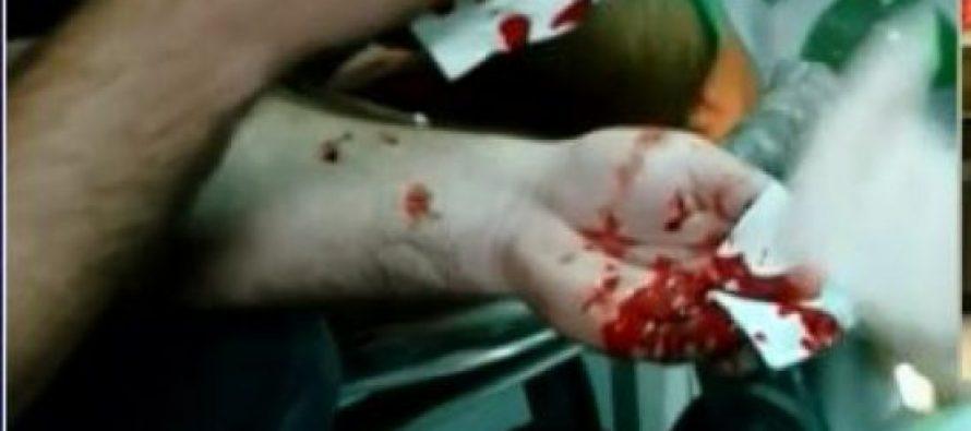 """სისხლიანი დარბევა რუსთაველზე – """"რუსთავი 2""""-ის თანამშრომელმა თვალი დაკარგა"""